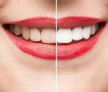 Get Pretty Smile with Teeth Whitening in Philadelphia