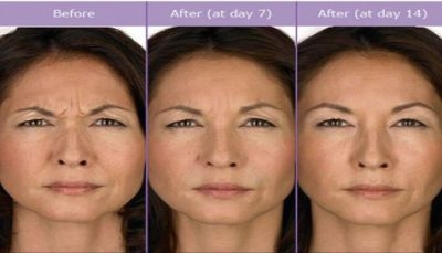 The Widespread Treatment of Facial Filler Chicago