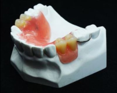 Use Flipper Partial Dentures for Missing Teeth.