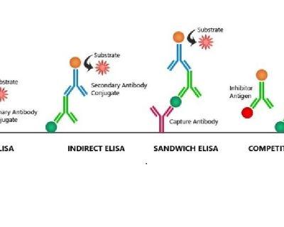 Elisa Principle And Procedure