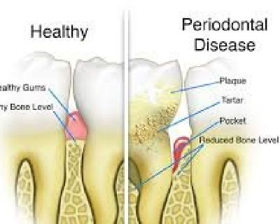 Periodontal Scaling And Root Planing Cost
