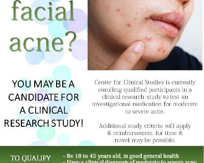 Acne Clinical Research Study Enrolling Ages 18 to 45