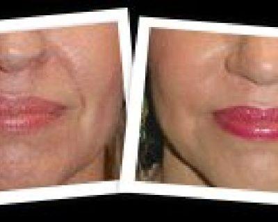 Chin and Cheek Augmentation - Mangatplasticsurgery