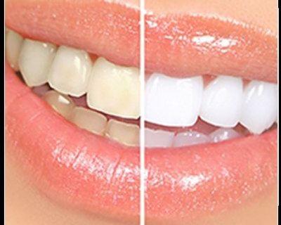 Dental Crowns Westwood