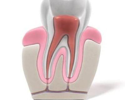 General & Cosmetic Dentistry in Palo Alto | Advanced Dental Care Center