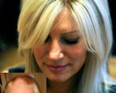 Get Best Hair Replacement Services In Florida