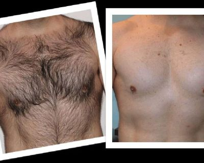"""Hair Removal for both Men & Women . """"Perfect YOU"""" next to Hacienda"""