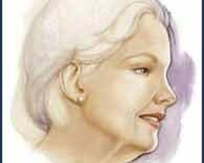 Face Lift Cosmetic Surgery ear reshaping