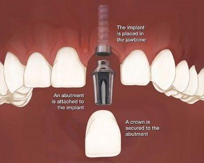 Smiles for Life Dental Care - Best Dental Implants & Dentures